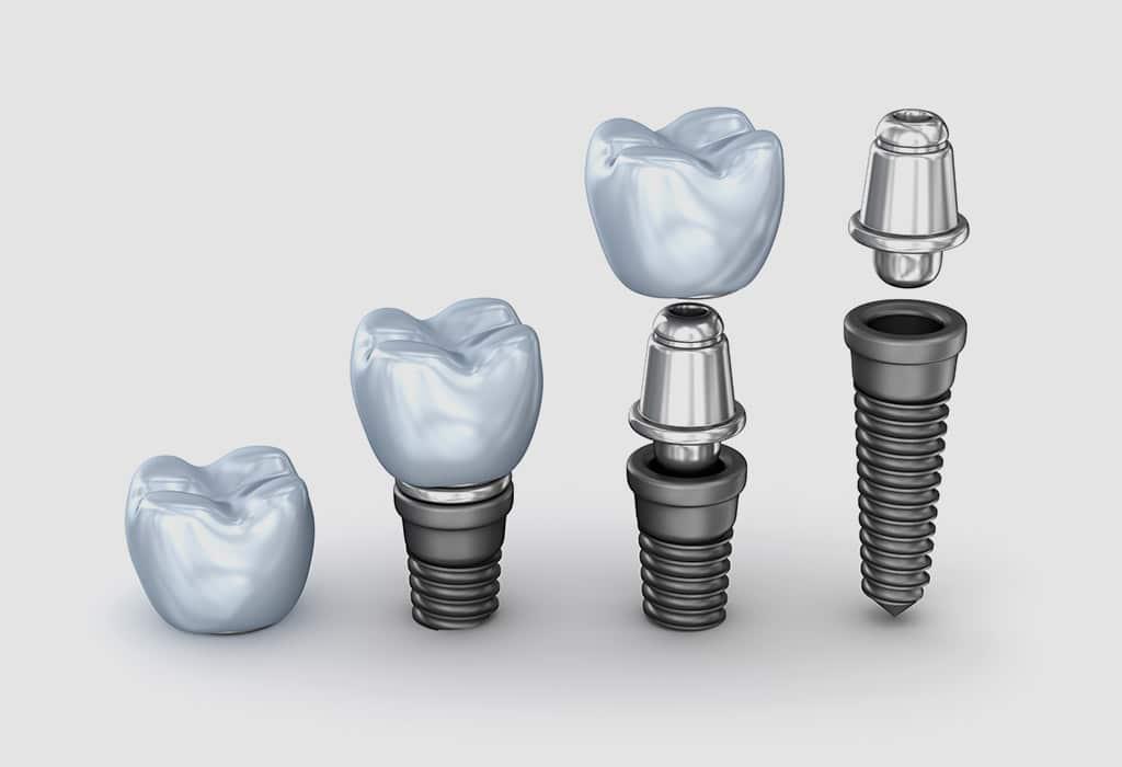 Implantes dentales. ¿Cuál es el proceso?