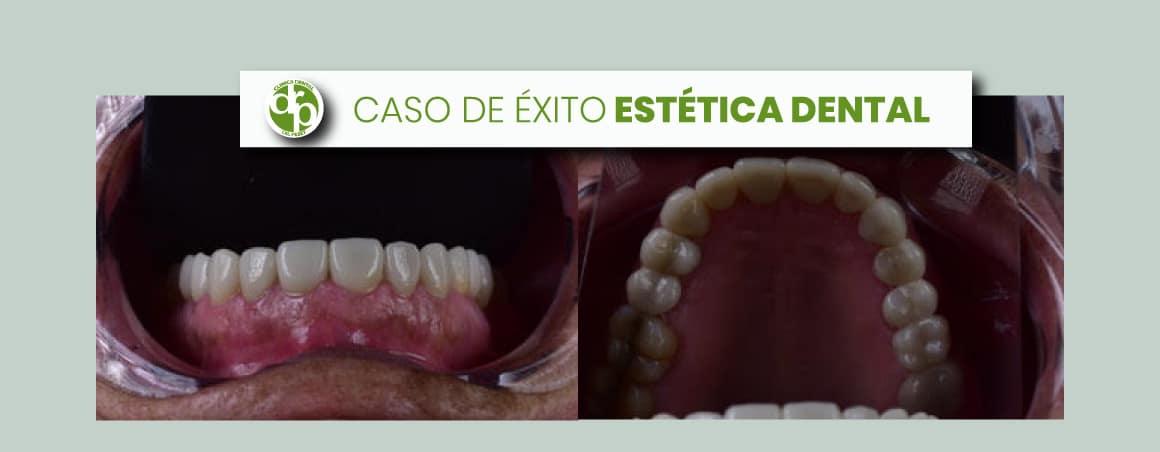 Caso de éxito estética dental