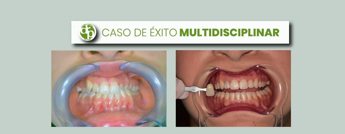 Caso multidisciplinar: ortodoncia y estética