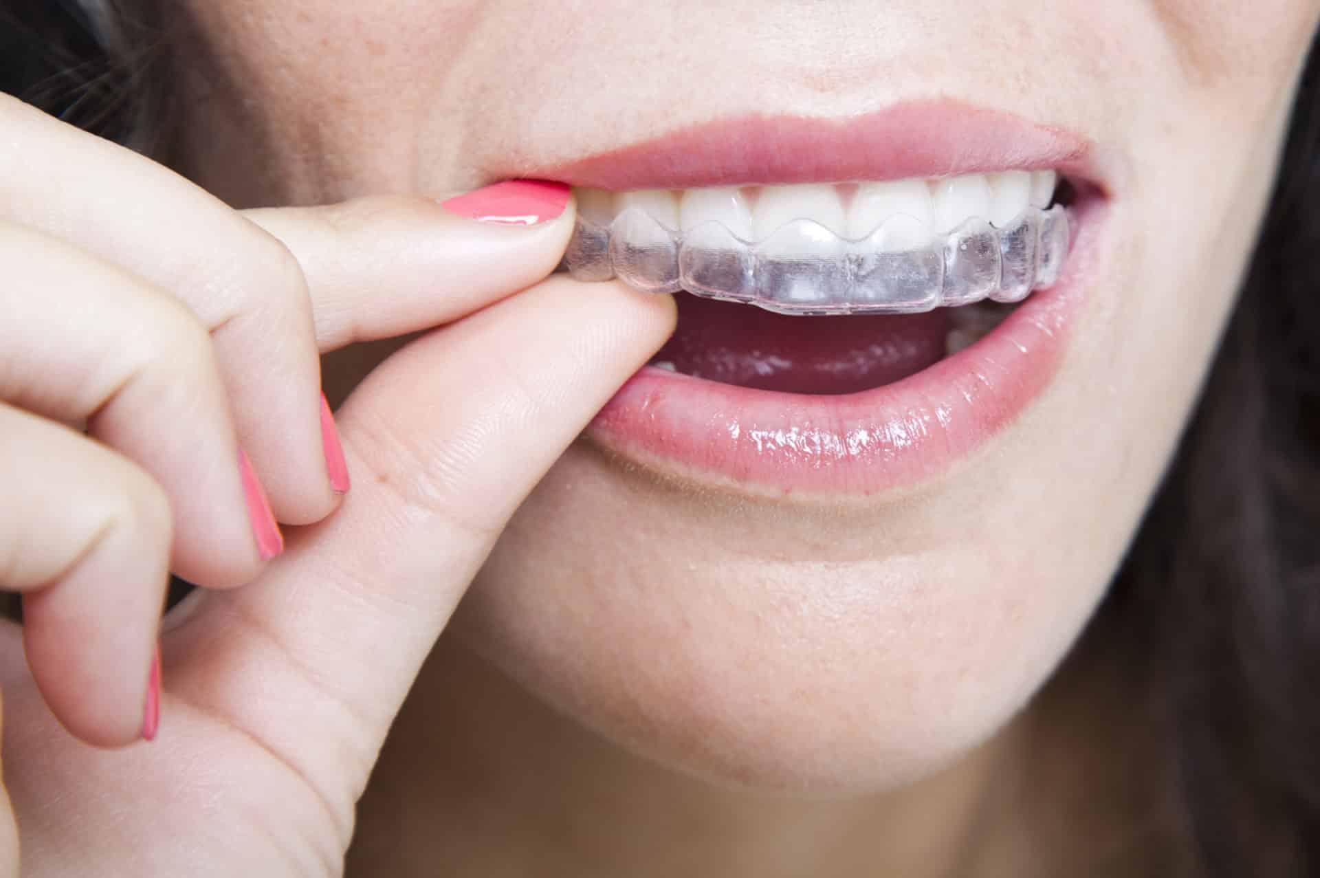 Descubre cómo quedará tu nueva sonrisa antes de comenzar tu tratamiento de ortodoncia invisible