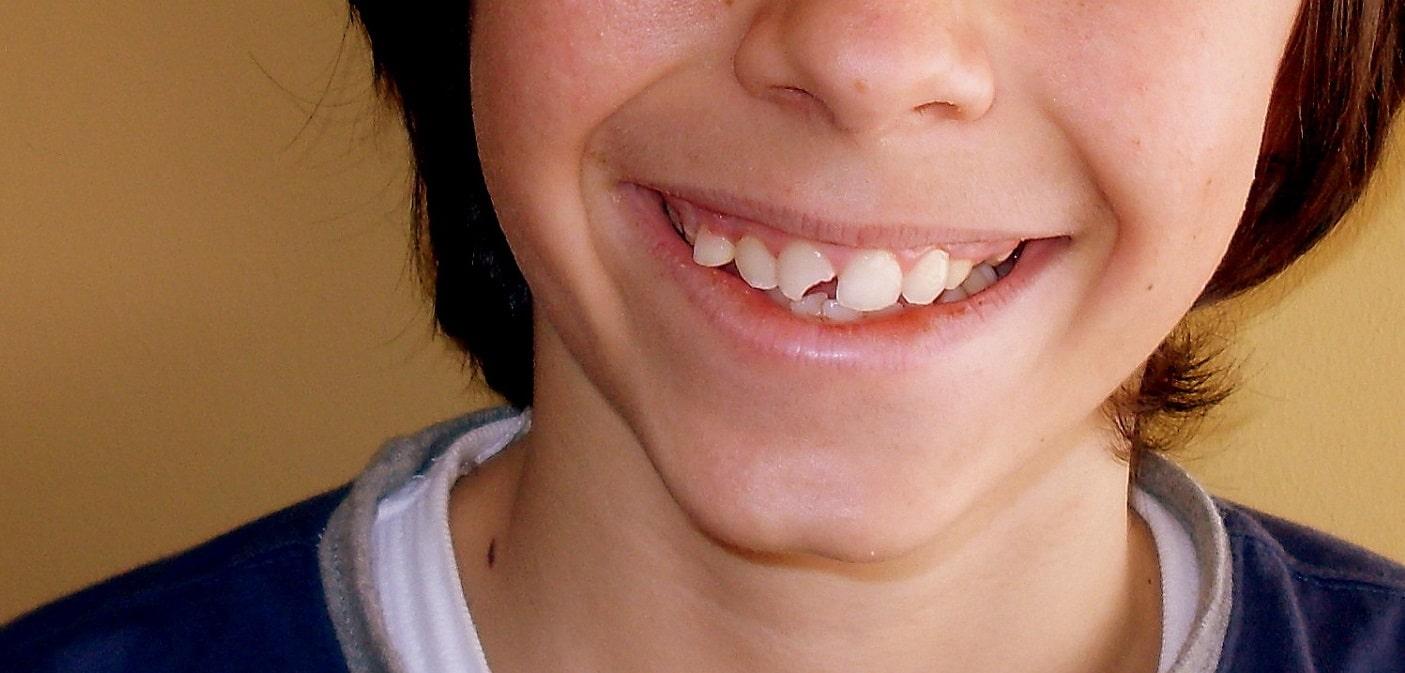 ¿Qué hacer si se me rompe un diente durante las vacaciones?