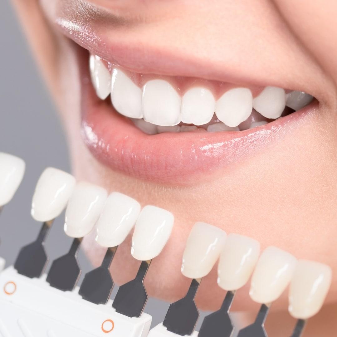 El tratamiento estético para conseguir tu sonrisa perfecta: las carillas dentales