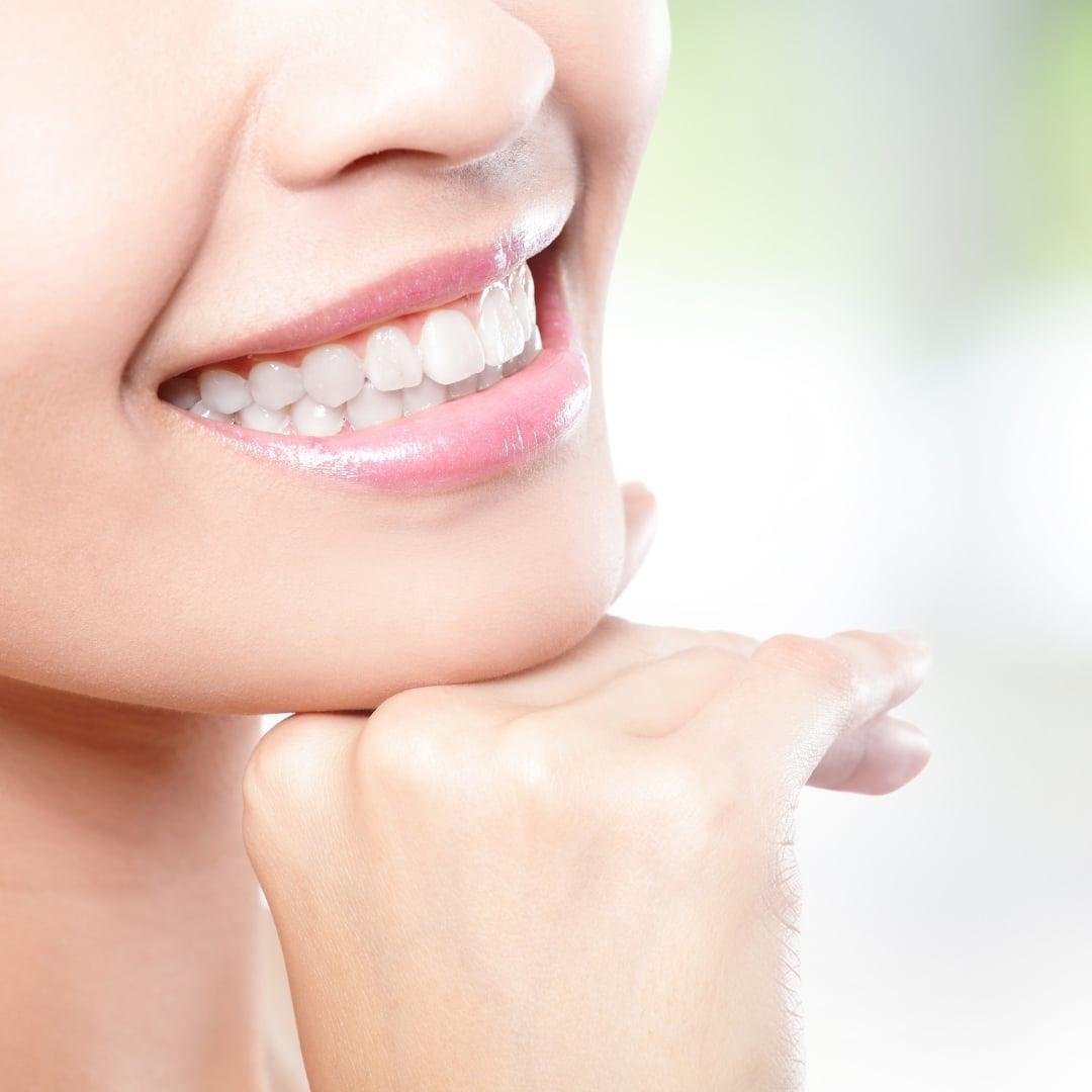 Blanqueamiento Dental para mejorar tu estética
